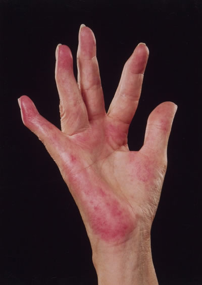Resultado de imagem para Lúpus eritematoso sistêmico